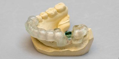 services-implants